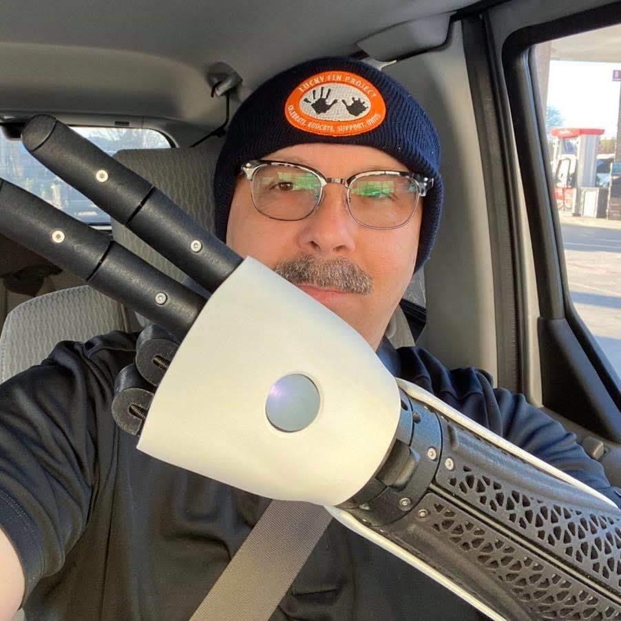 Jeff wearing Hero Arm
